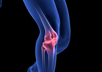 Quels bénéfices attendre des compléments alimentaires pour l'arthrose ?